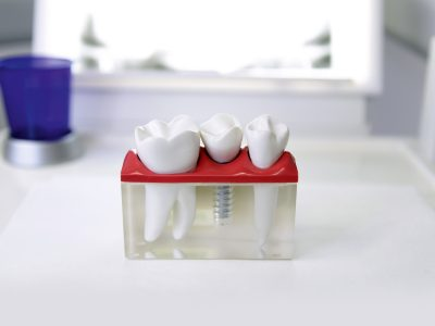 Implantat 3-D-Modell