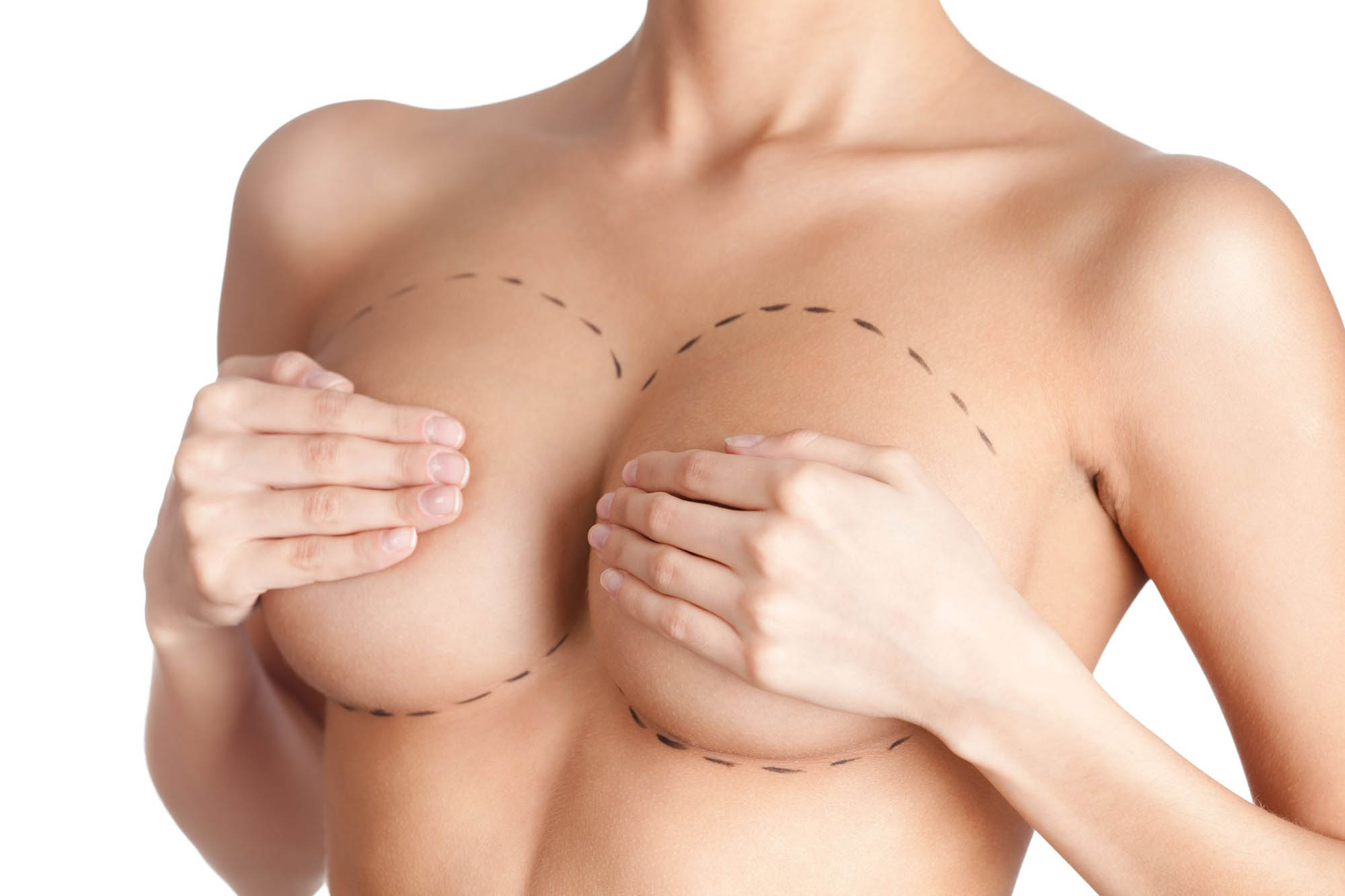 Brust vor einer Operation