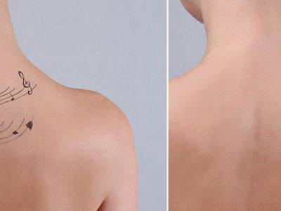 Vergleich eines Rückens mit und ohne Tattoo
